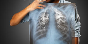 lung cancer from smoking weed or marijuana